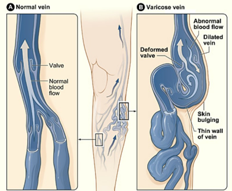 Does Your Weight Cause Varicose Veins? : ObesityHelp