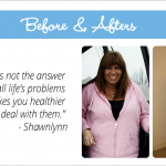 February Spotlight: Weight Loss Surgery Before and After Photos