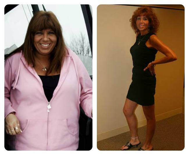 shawnlynn-wls-before-and-after
