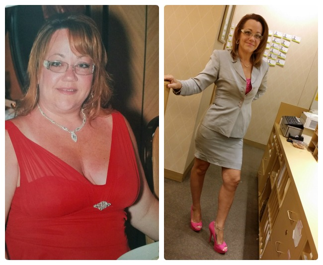 May Member Spotlight Weight Loss Surgery Before And After