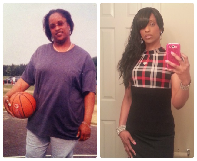 Member Spotlight Weight Loss Surgery Before And After Obesityhelp