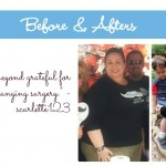 July Member Spotlight: Weight Loss Surgery Before and After