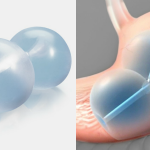 Bariatric News: ReShape Integrated Dual Balloon