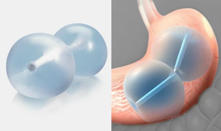 Resultado de imagen para ReShape Integrated Dual Balloon System