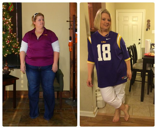 August Member Spotlight Weight Loss Surgery Before And After