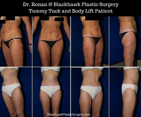 Top 7 Plastic Surgery Procedures For Extreme Weight Loss Patients