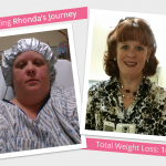Before & After VSG with Rhonda!