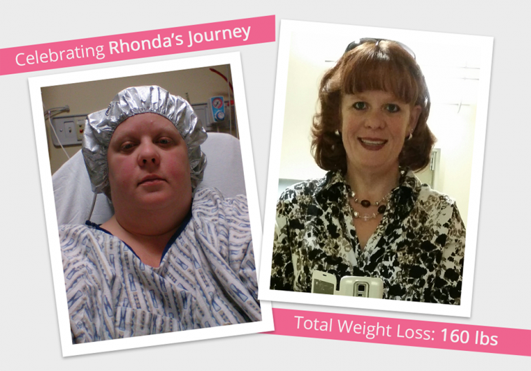 Before After VSG With Rhonda