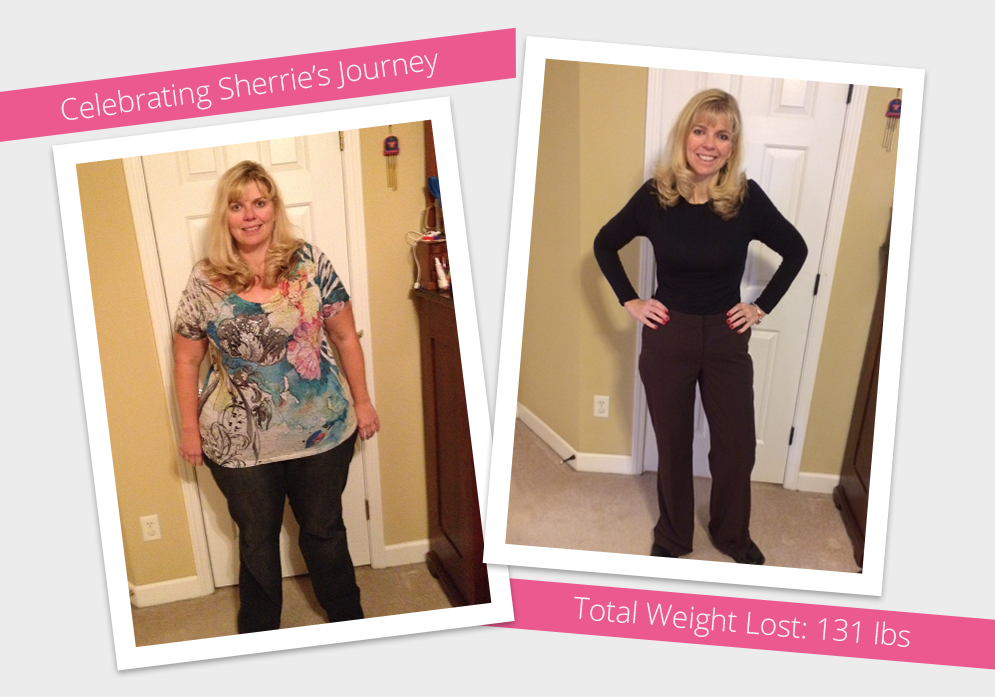 Before After Revision To Rny With Sherrie Obesityhelp