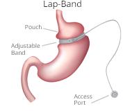 lapband