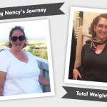 Before & After Gastric Sleeve with Nancy!