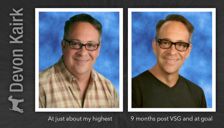 Living with the Vertical Sleeve Gastrectomy