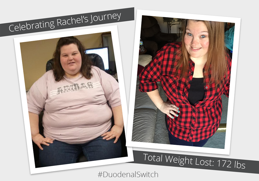 Before & After DS with Rachel! : ObesityHelp
