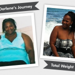 Before and After RNY with Darlene's 165 Pound Weight Loss!