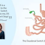 Living With the Duodenal Switch (DS)