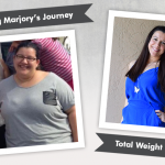 Before & After Gastric Sleeve (VSG) with Marjory
