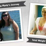 Before & After RNY Gastric Bypass with Mysty