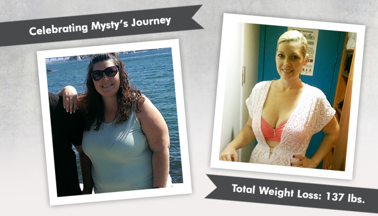Before After Rny Gastric Bypass With Mysty Obesityhelp