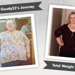 Before & After RNY with Goody22's 286 Pound Weight Loss!
