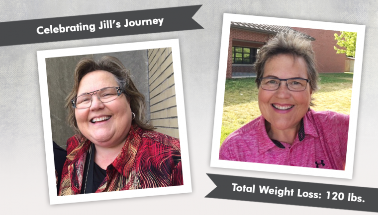 Before After Revision From Lap Band To Gastric Bypass With Jill