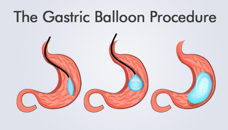 The Gastric Balloon Procedures
