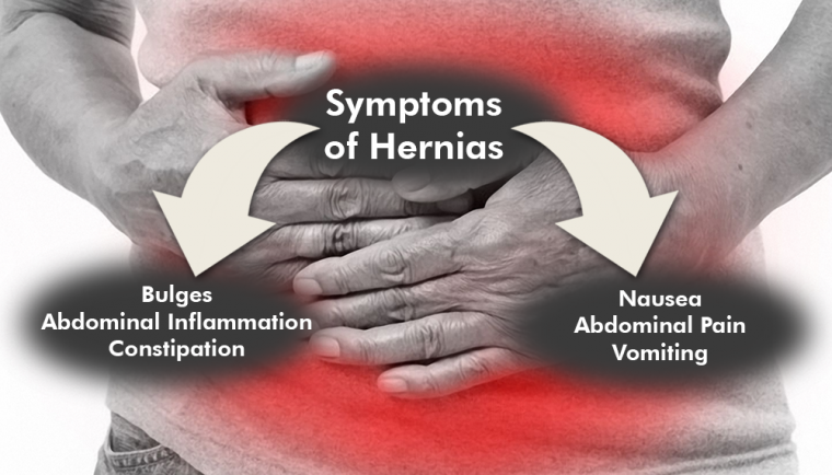 Hernias After WLS: Causes, Symptoms and Treatments ...