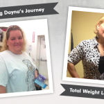 Before & After VSG with Dayna – 170 Pounds Lost!