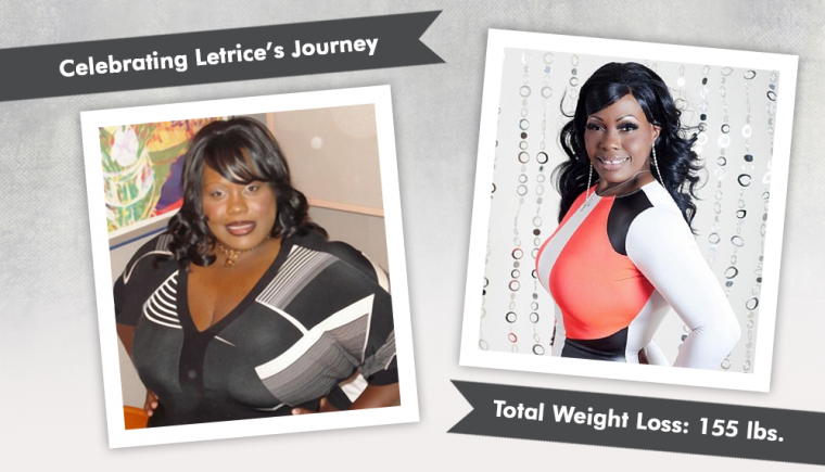 before and after gastric bypass with letrice 1
