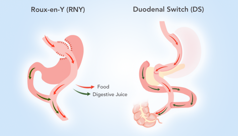 What To Expect Of A Revision From Rny To Ds Obesityhelp