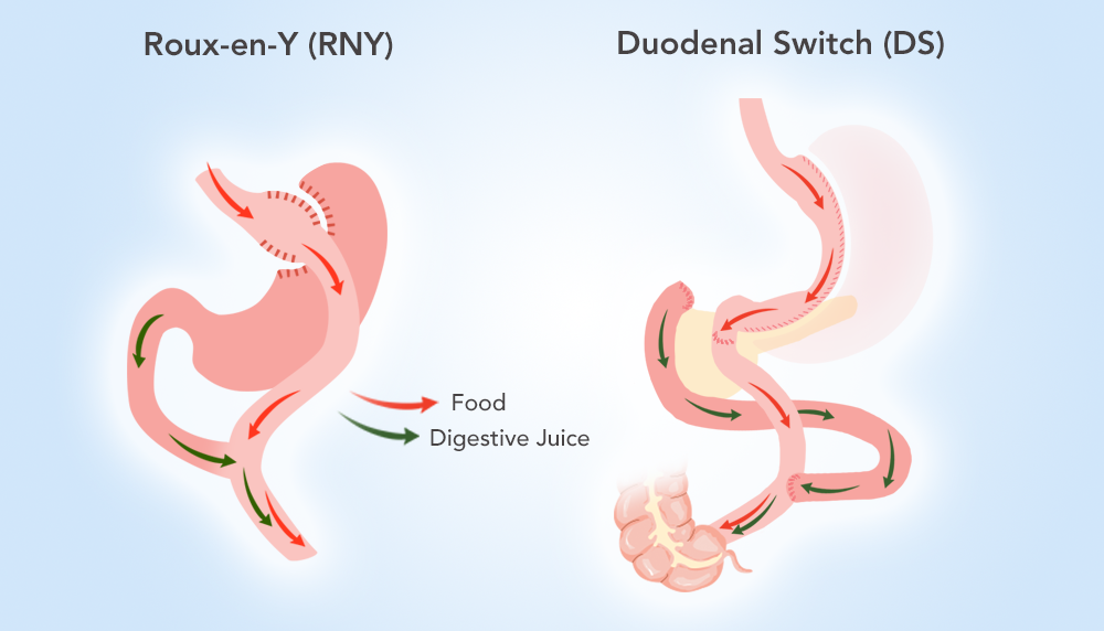 What to Expect of a Revision from RNY to DS : ObesityHelp