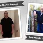 Before & After Gastric Bypass with Skotti, losing 202 pounds