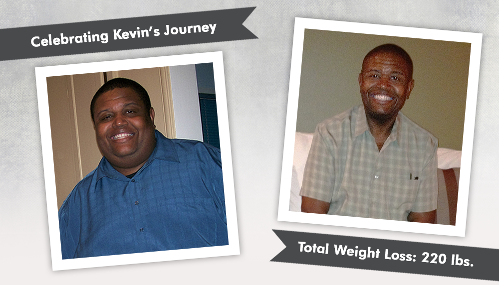 Before & After Gastric Bypass RNY with Kevin, losing ...