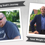 Before & After the Sleeve with Scott, losing 208lbs!