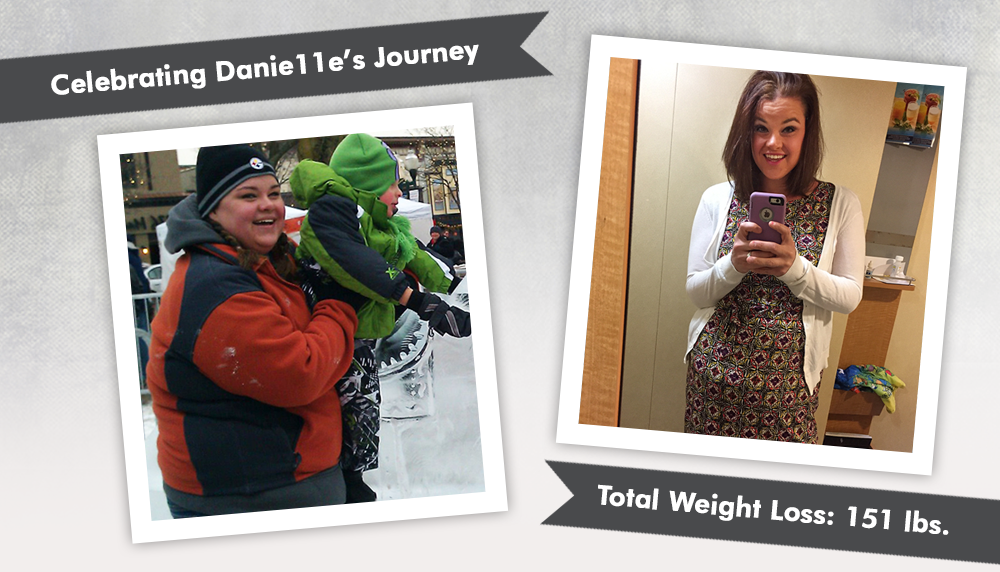 Before & After RNY Gastric Bypass with Danie11e : ObesityHelp