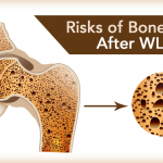 Protect Your Bone Health If You've Had WLS