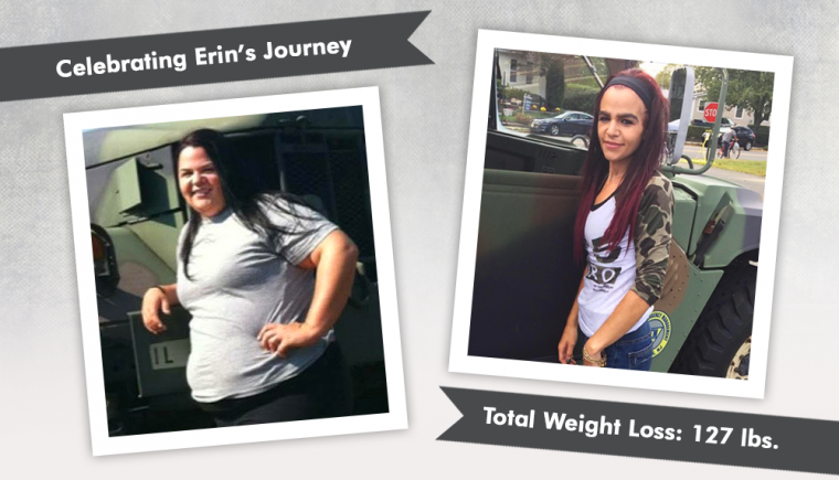 Before After Gastric Sleeve With Erin Obesityhelp