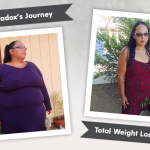 Before & After RNY with WintersParadox, losing 225 lbs!