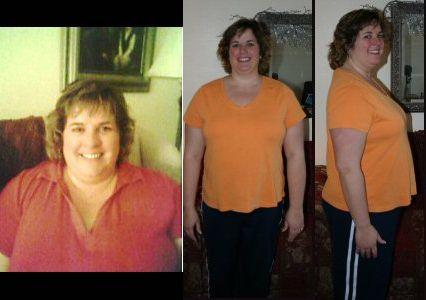 ssm depaul weight loss institute