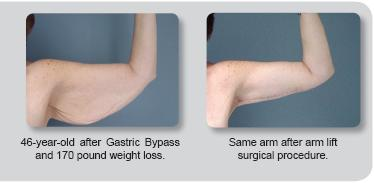 Patients Who Have Undergone Weight Loss Surgery And The Subsequent Significant May Numerous But Similar Areas Of Concern