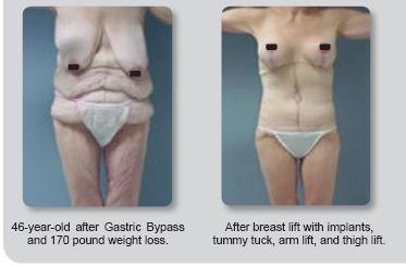 Body Contouring After Gastric Bypass Surgery