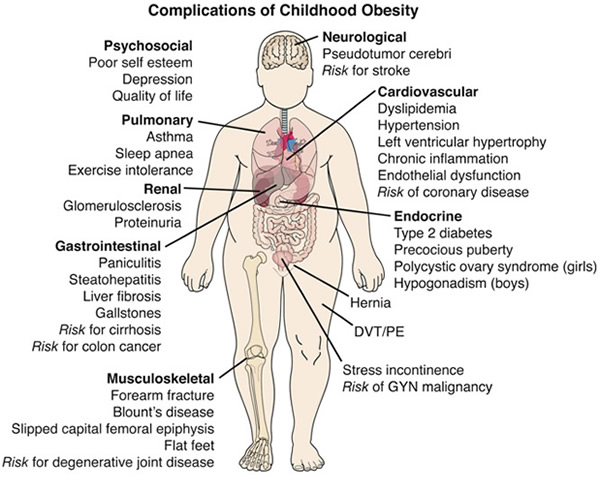 Teen and Childhood Obesity