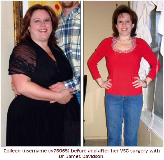 Diet After Gastric Sleeve Surgery