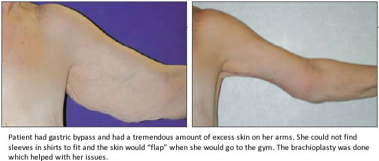 Under Arm Lifts : Arm lift procedures after weight loss
