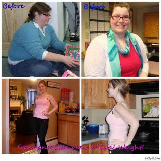 Before And After http://www.obesityhelp.com/forums/vsg/4619251/Before