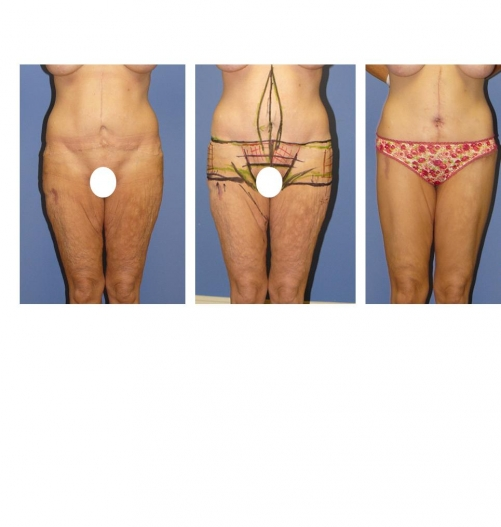 Obesity Help Plastic Surgery