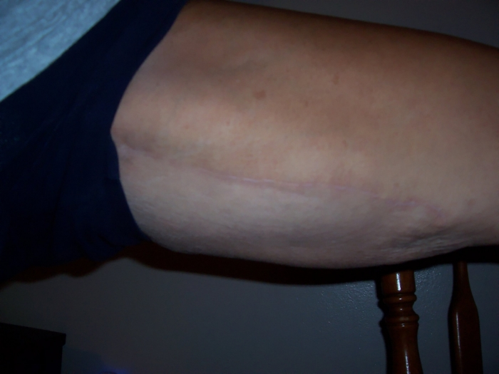 Pics of Inner Thigh Incisions 1 yr. Post-Op