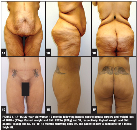Breast reduction ohip