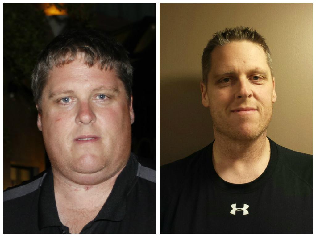 weight loss surgery hamilton ontario