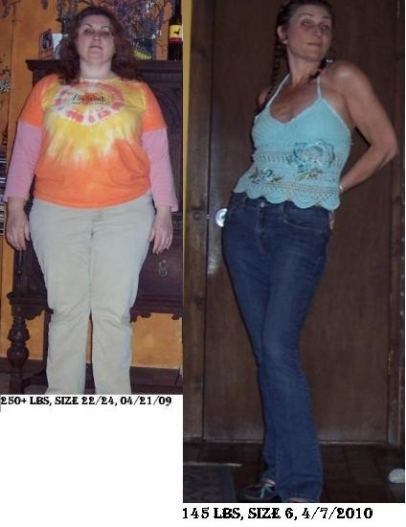 RNY and VSG before and after pics!