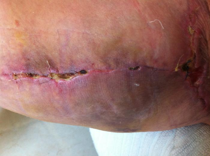 corked thigh from steroids